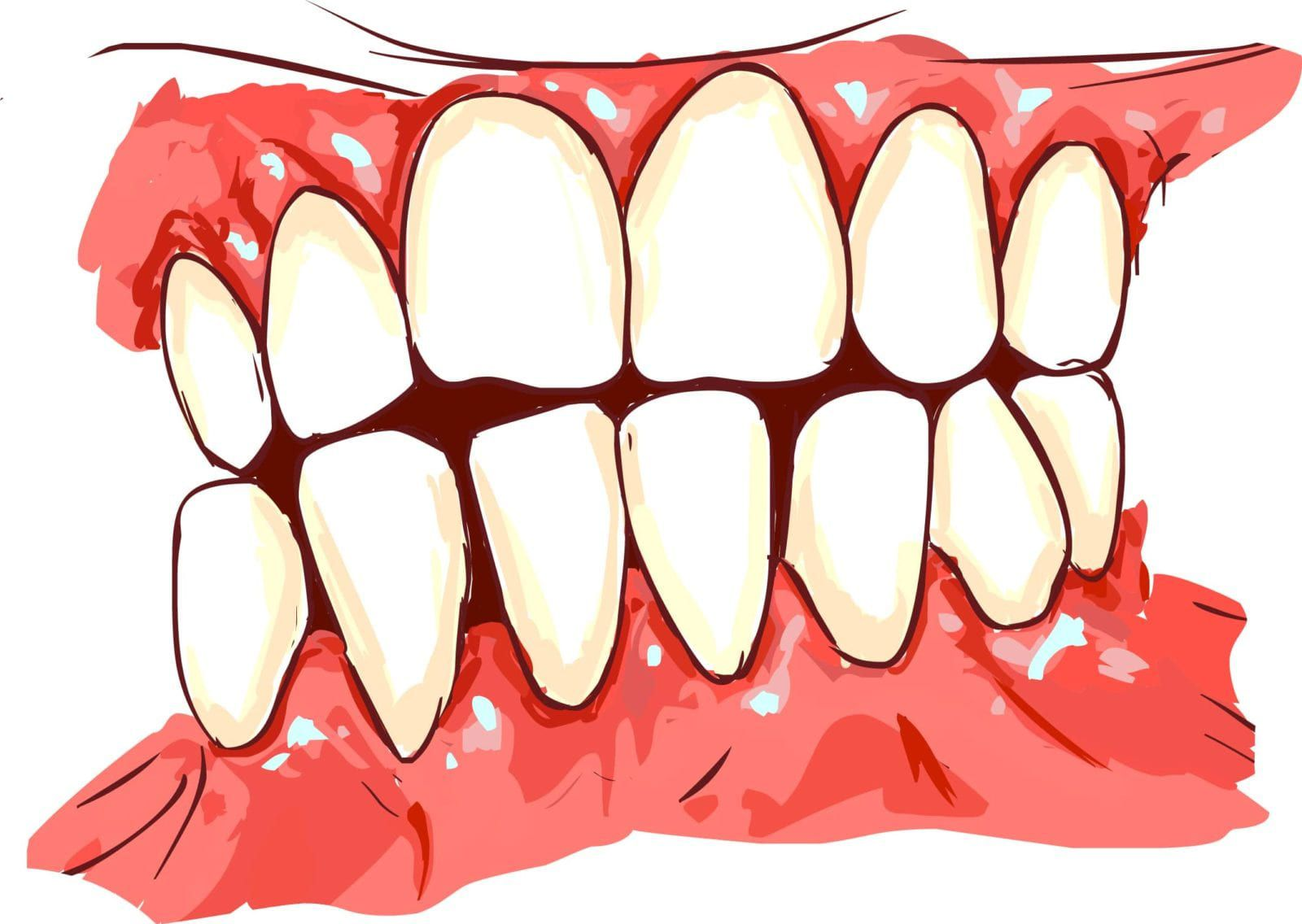gums that are irritated and have receeded