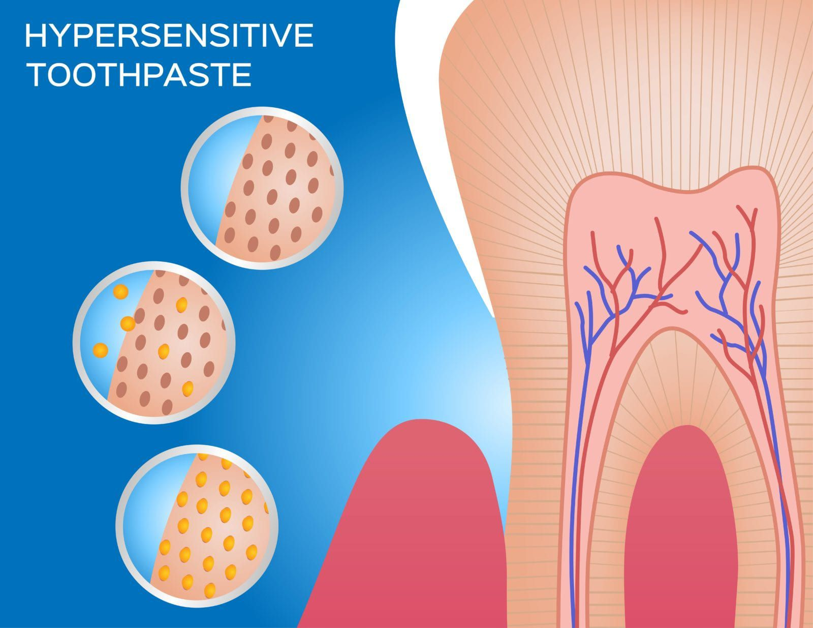 how hypersensitive toothpaste works
