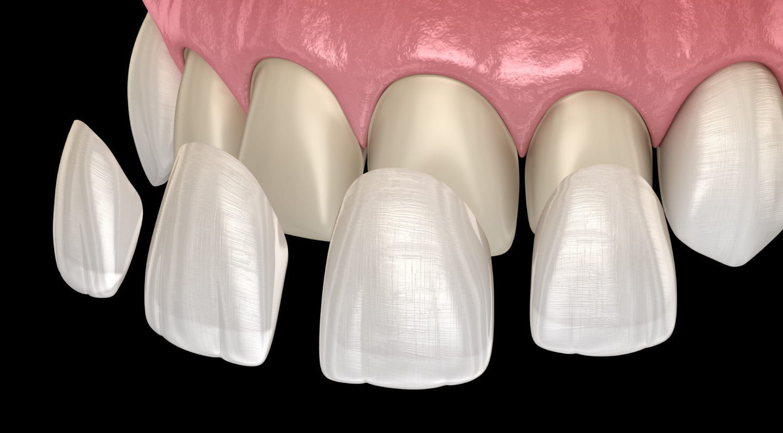 dental veneers shown over natural teeth