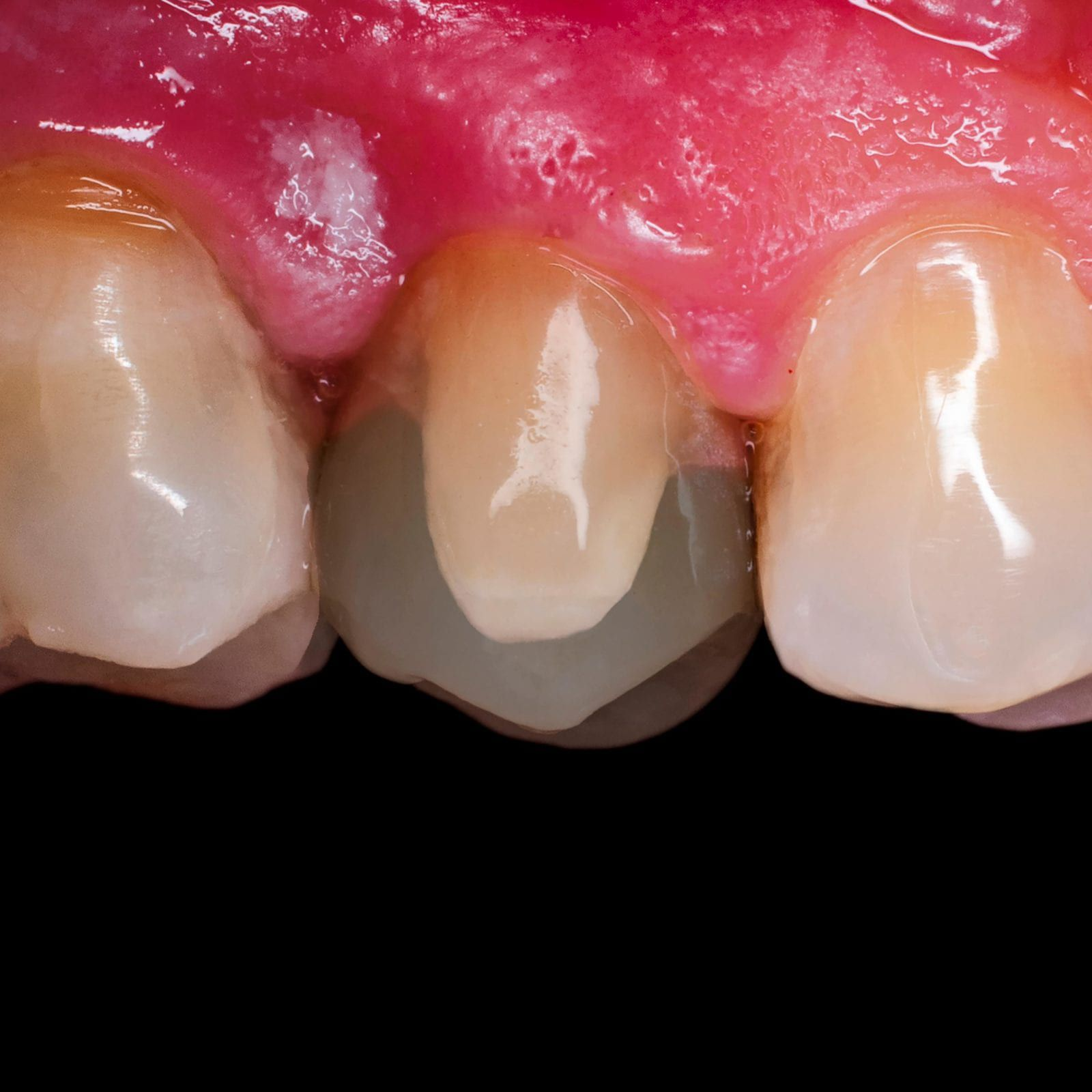 veneer shown over oddly shaped tooth