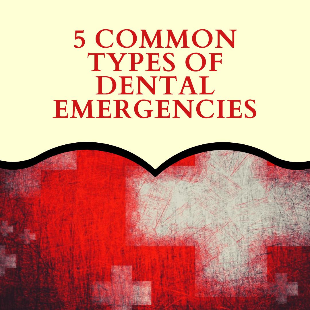 5 Common Types of Dental Emergencies
