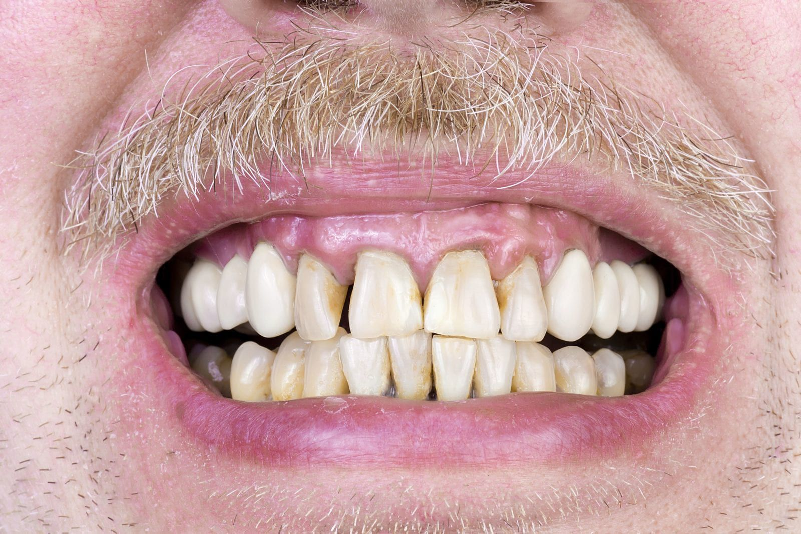 many smiling with gum disease