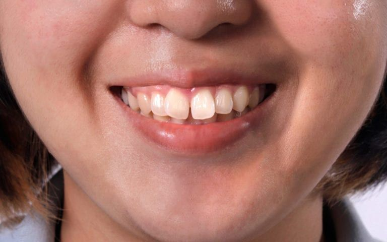 Woman with protruding teeth