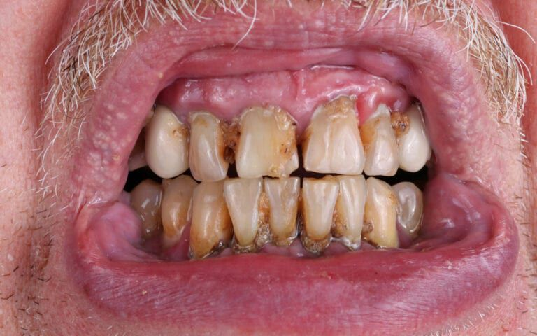 Mouth with periodontal disease